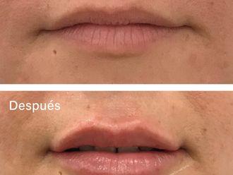 Aumento labios-788777