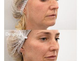 Rellenos faciales-788780