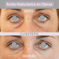 Eliminación de ojeras - Eiviestetic Grupo Policlinica