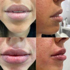 Aumento de labios - Adara Clínicas