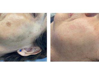 Tratamiento antimanchas-741842