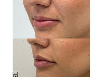 Aumento labios-663898