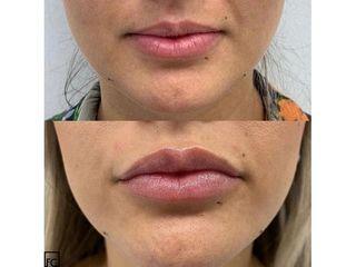 Aumento de labios - Clínica Dr Felipe Castillo