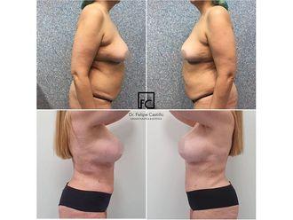 Abdominoplastia-663914