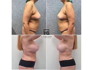 Abdominoplastia - Clínica Dr Felipe Castillo