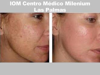Rejuvenecimiento facial-737377