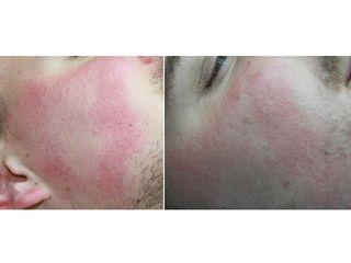 Antes y después Rosácea