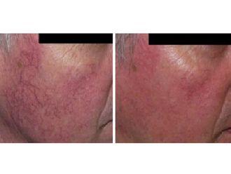 Dermatología-494871