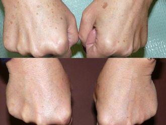 Tratamiento antimanchas-496733