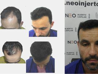 Antes y Después Cirugía Capilar.