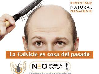 Neo Injerto Capilar Promoción