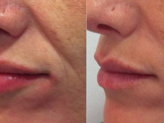 Rellenos faciales - 551366