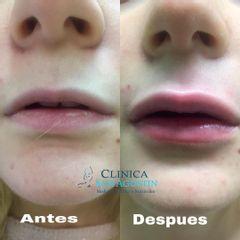 Aumento de labios - Clínica San Agustín De Albacete