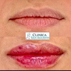 Aumento de labios - Clínica San Agustín