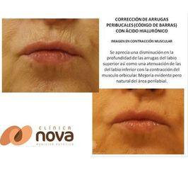 Antes y despues de correccion de arrugas peribucales