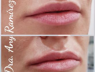Aumento labios - 634229