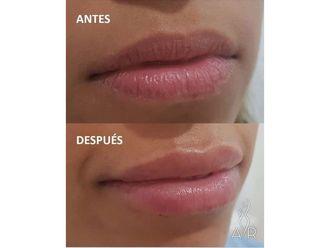 Aumento labios - 650425