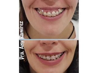 Antes y después Bótox - Sonrisa gingival