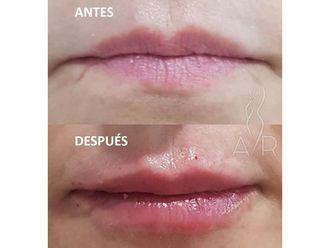 Aumento labios - 650431