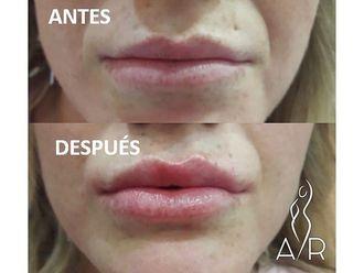 Aumento labios - 650434
