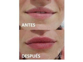 Aumento labios-650436