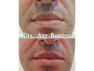 Aumento labios - 650438