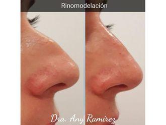 Rinomodelación-650443