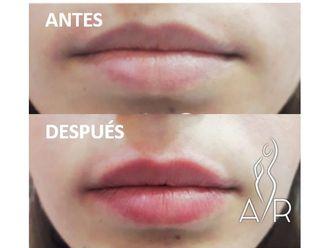 Aumento labios - 650444