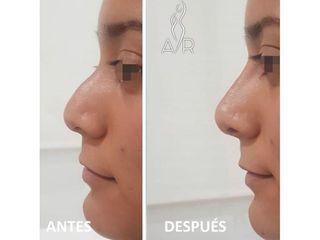 Antes y después Rinomodelación - Clínica Dra. Any Ramírez