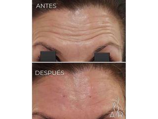 Antes y después Bótox - Clínica Dra. Any Ramírez