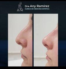 Rinomodelación - Dra. Any Ramírez
