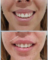 Sonrisa gingival - Dra. Any Ramírez