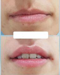 Aumento de labios - Dra. Any Ramírez