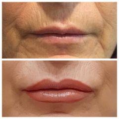 Aumento de labios - Clínica De Cirugía Plástica Dra. Claudia Parra