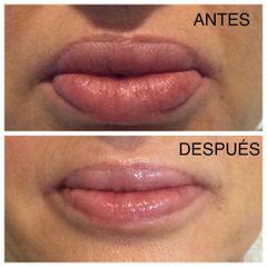Remodelación de labios - Dra. Claudia Parra