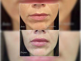 Antes y después Relleno de labios con ácido hialurónico