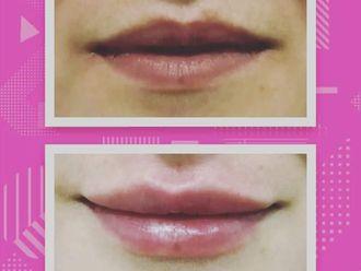 Aumento labios - 646453