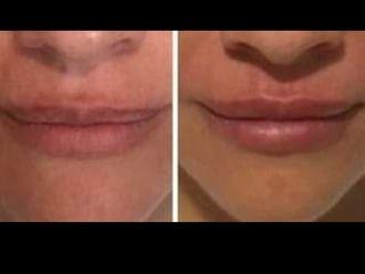 Aumento labios - 646454