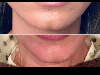 Rellenos faciales-646455