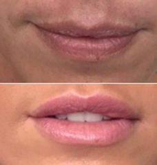 Antes y después Aumento de labios con ácido hialurónico indicado para la zona.