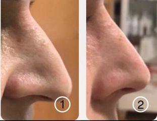 Antes y después Rinomodelación con ácido hialurónico - Dra. Adriana Antesola