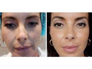 Antes y después Hilos tensores - Dra. Adriana Antesola