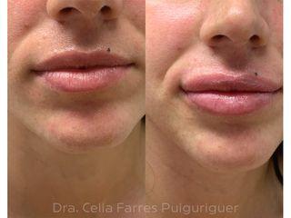 Antes y después Aumento de labios - Dra. Celia Farres Puiguriguer