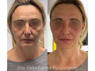 Antes y después Ácido hialurónico - Dra. Celia Farres Puiguriguer