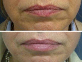 Aumento labios - 495870