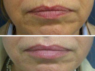 Rejuvenecimiento de labios. Tratamiento realizado por la Dra. Mariela Barroso