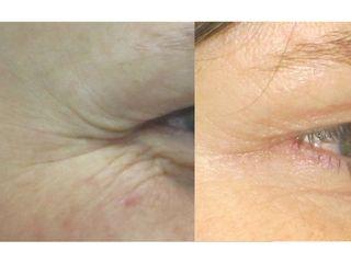 Botox en arrugas peri-oculares (patas de gallo). Tratamiento realizado por la Dra. Mariela Barroso