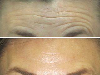 Botox en arrugas frontales. Tratamiento realizado por la Dra. Mariela Barroso