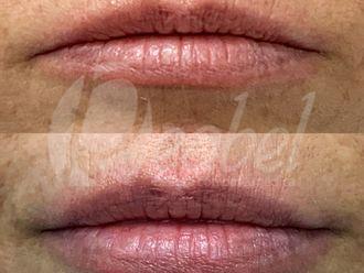 Aumento labios-649402