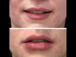 Hidratación labial con ácido hialurónico